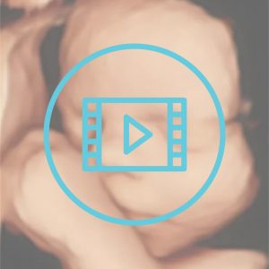 4D Scan video download